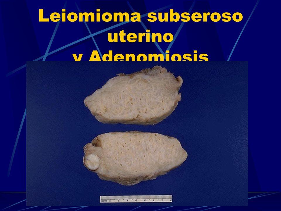 Leiomioma subseroso uterino y Adenomiosis