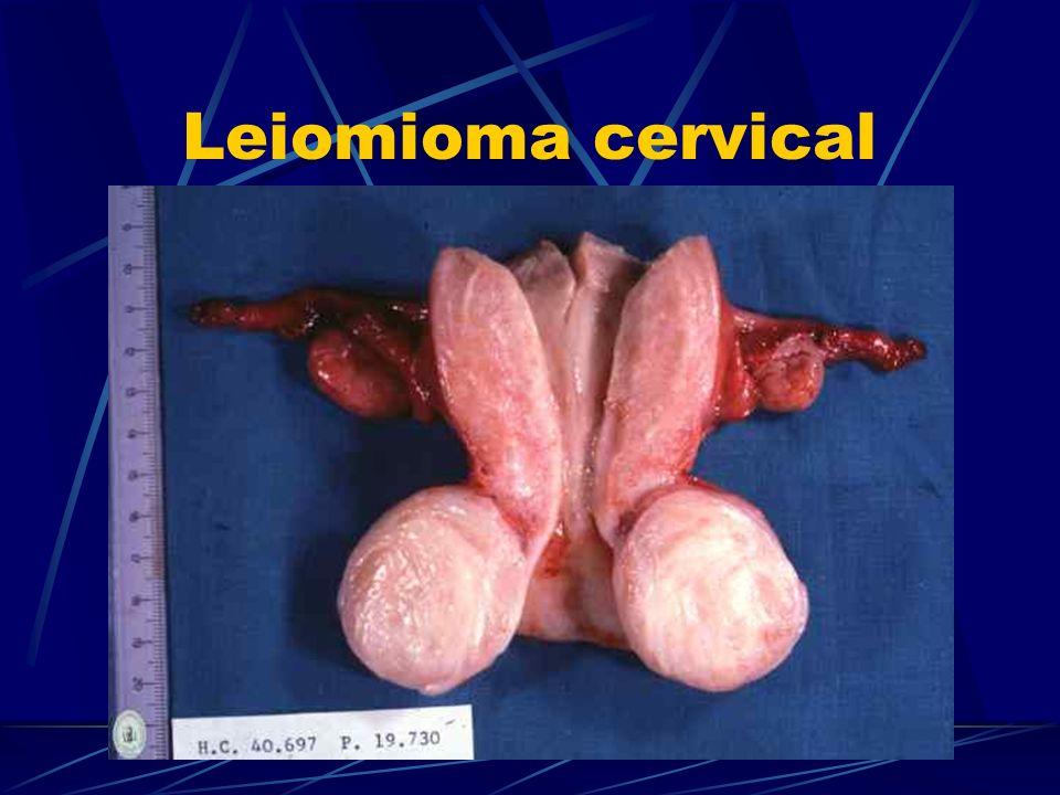 Leiomioma cervical