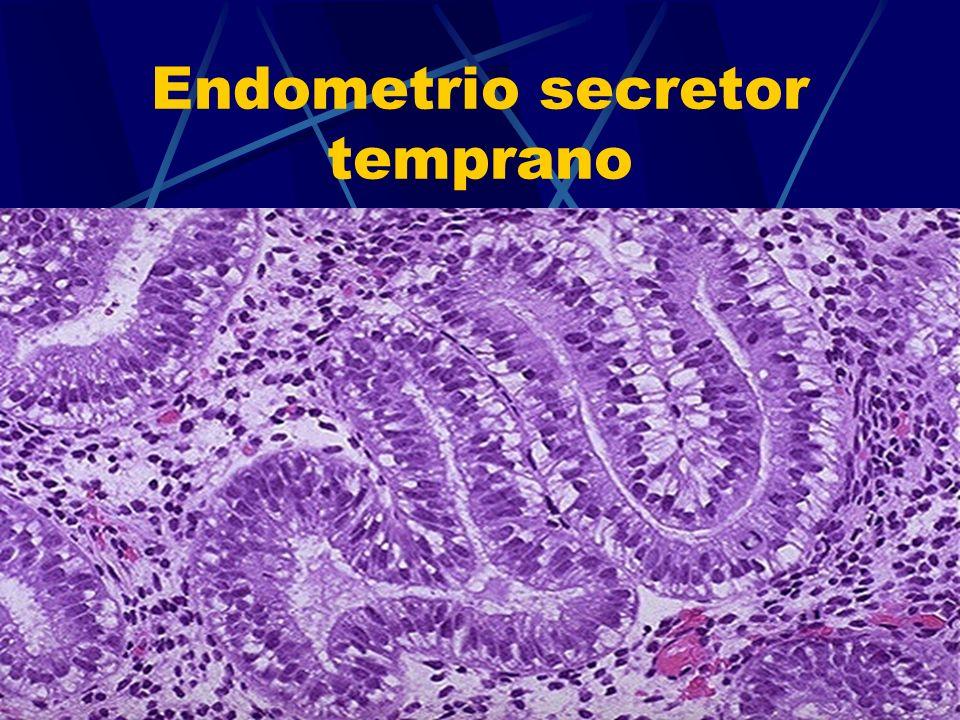 Endometrio secretor temprano
