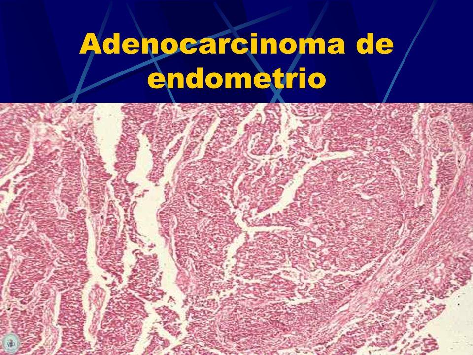 Adenocarcinoma de endometrio