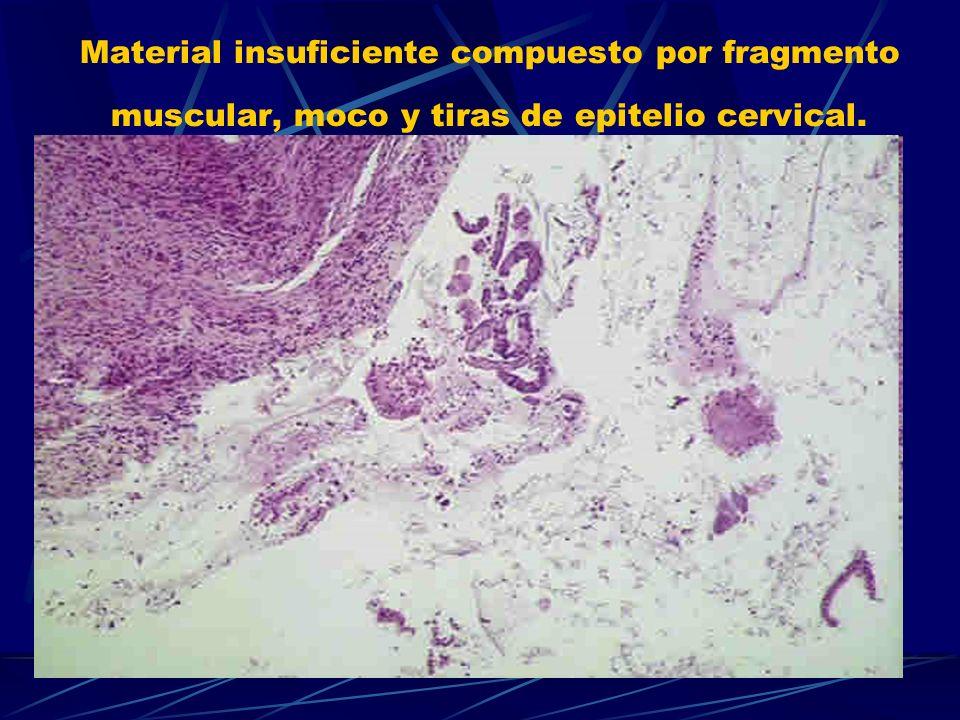 Material insuficiente compuesto por fragmento muscular, moco y tiras de epitelio cervical.