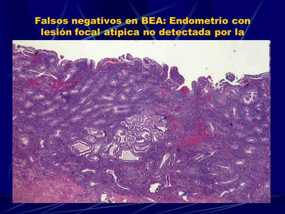 Falsos negativos en BEA: Endometrio con lesión focal atípica no detectada por la biopsia aspirativa.