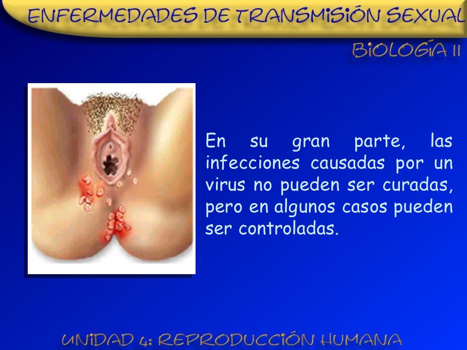 En su gran parte, las infecciones causadas por un virus no pueden ser curadas, pero en algunos casos pueden ser controladas.