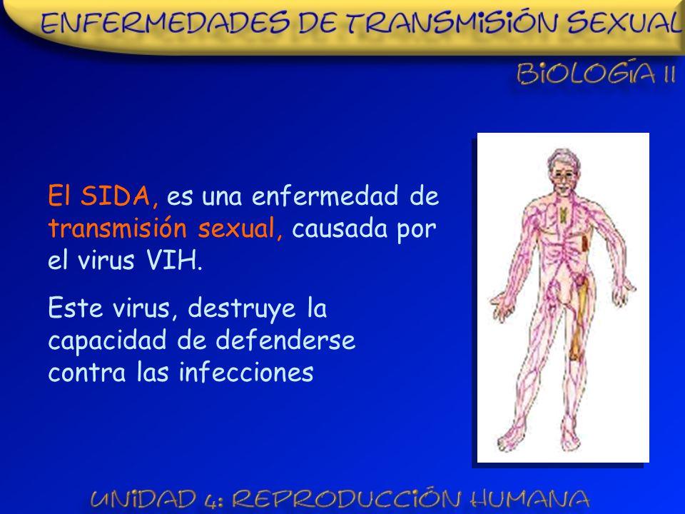 El SIDA, es una enfermedad de transmisión sexual, causada por el virus VIH.