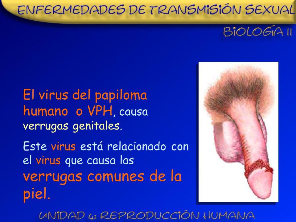 El virus del papiloma humano o VPH, causa verrugas genitales.