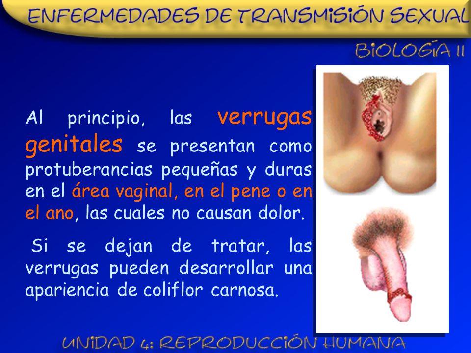 Al principio, las verrugas genitales se presentan como protuberancias pequeñas y duras en el área vaginal, en el pene o en el ano, las cuales no causan dolor.