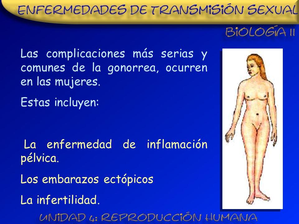 Las complicaciones más serias y comunes de la gonorrea, ocurren en las mujeres.