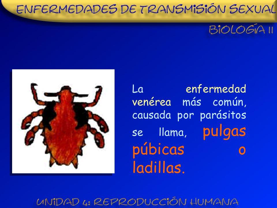 La enfermedad venérea más común, causada por parásitos se llama, pulgas púbicas o ladillas.