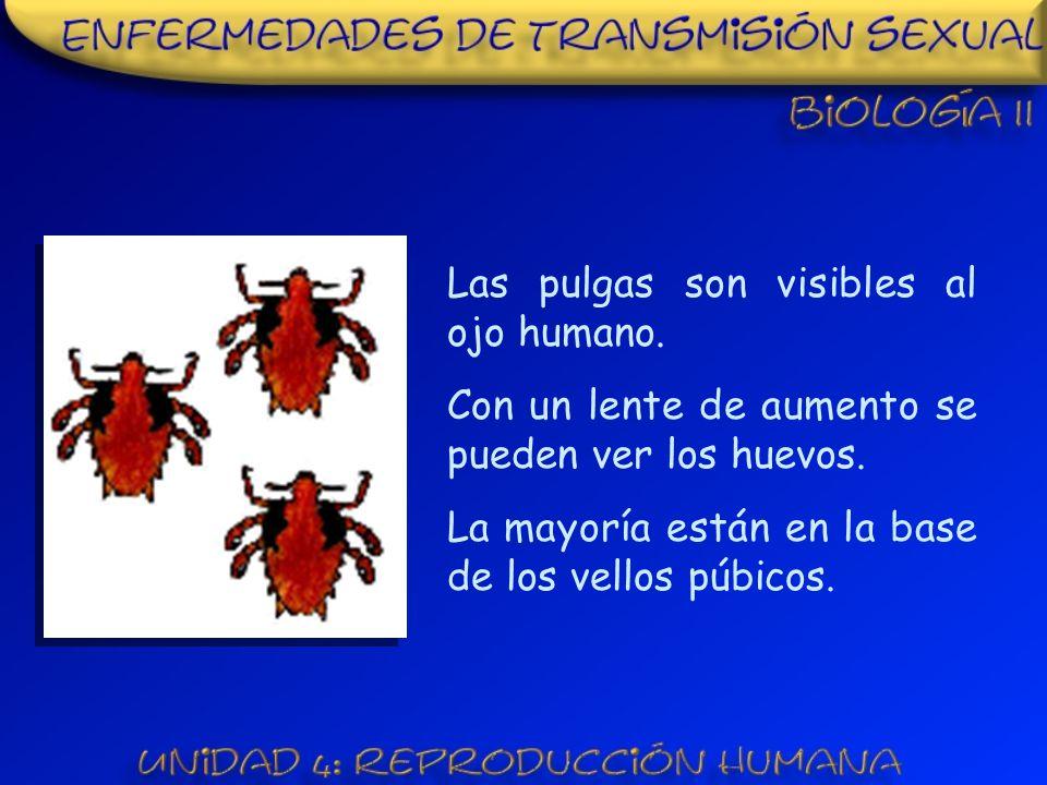 Las pulgas son visibles al ojo humano.