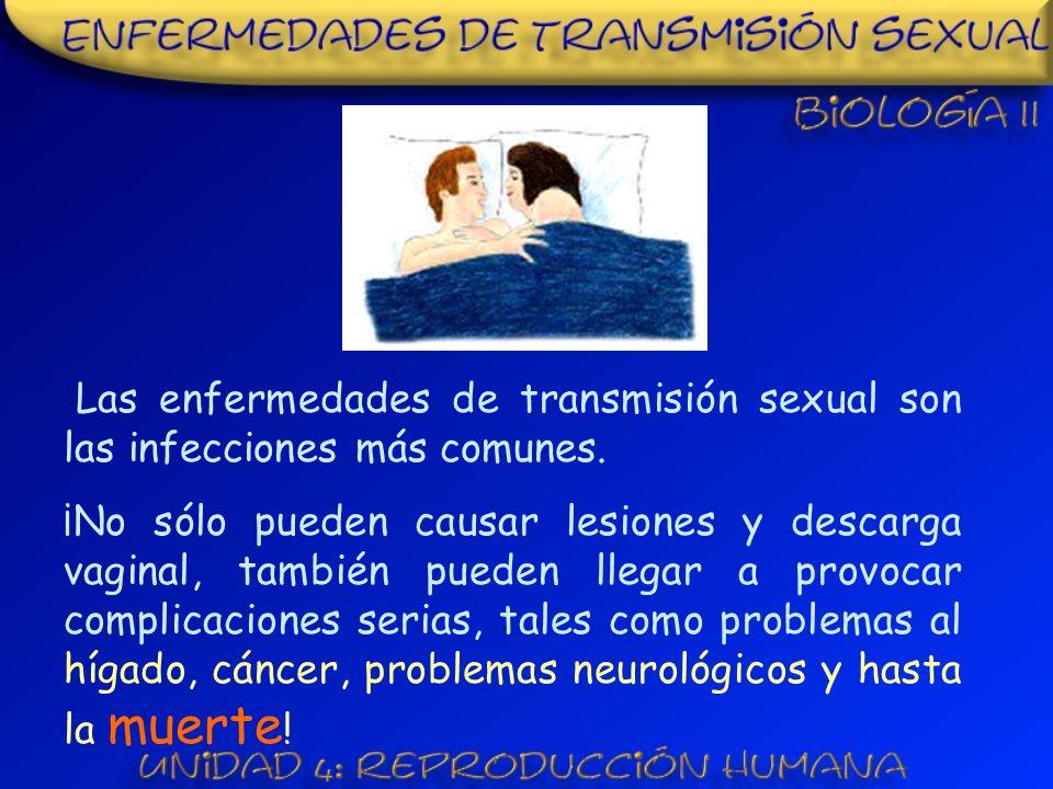 Las enfermedades de transmisión sexual son las infecciones más comunes.