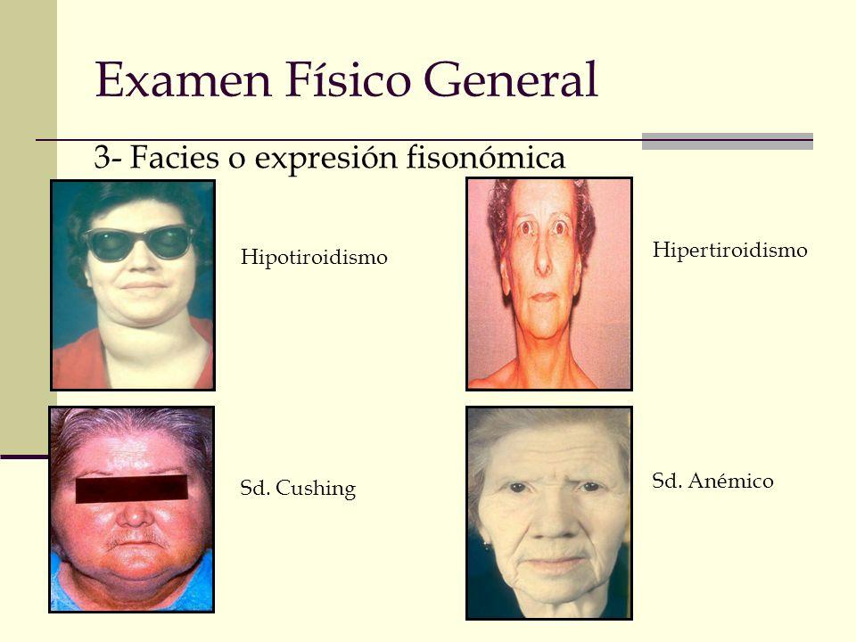 Examen Físico General 3- Facies o expresión fisonómica Hipertiroidismo