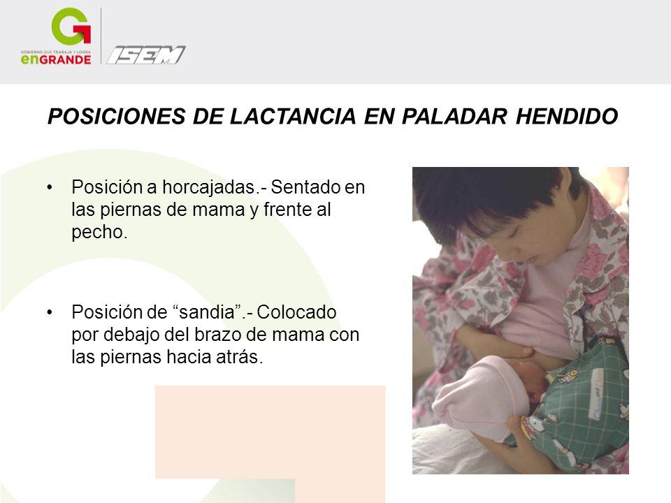 POSICIONES DE LACTANCIA EN PALADAR HENDIDO