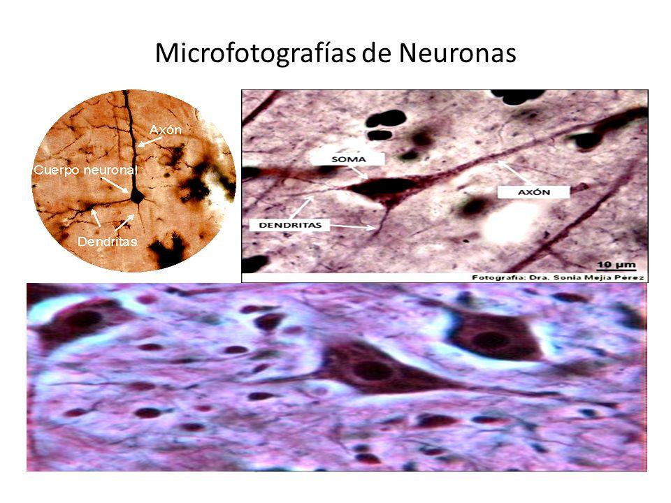 Microfotografías de Neuronas