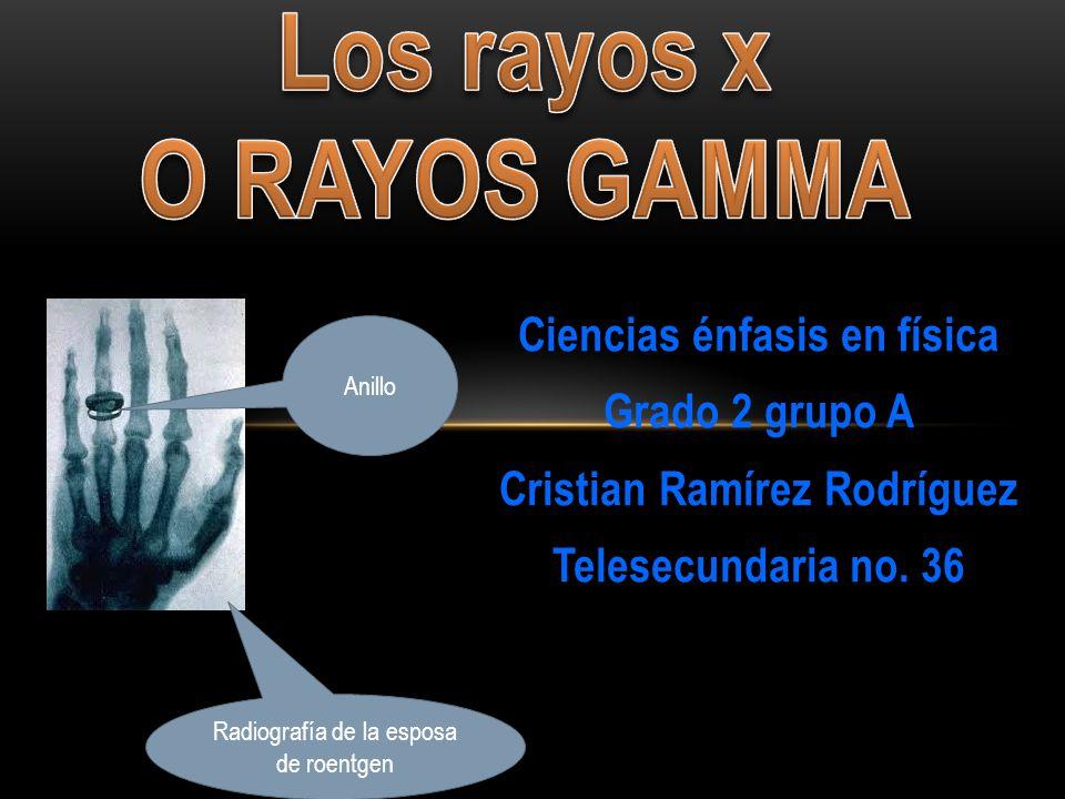 Los rayos x o rayos gamma