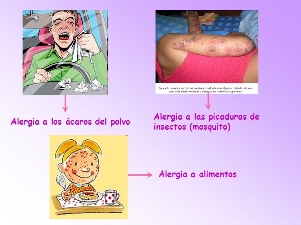 Alergia a las picaduras de insectos (mosquito)