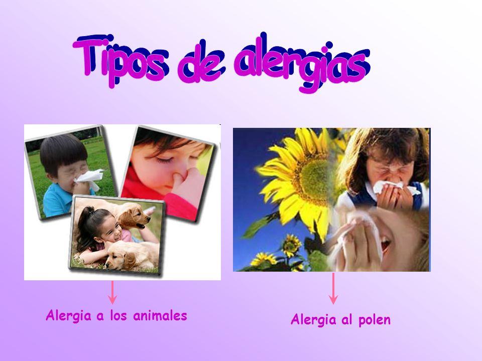 Tipos de alergias Alergia a los animales Alergia al polen