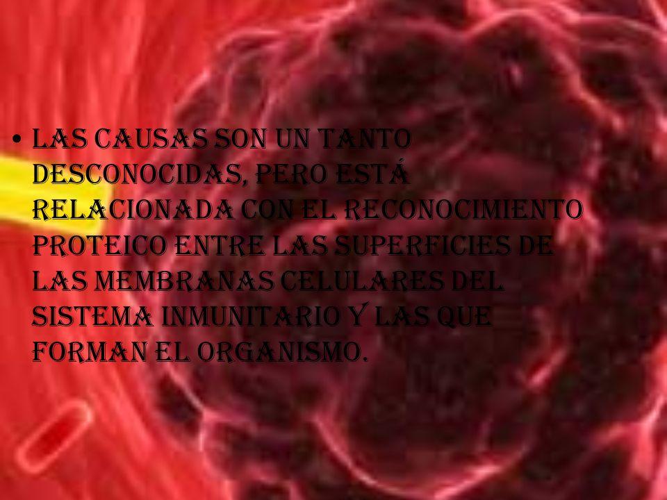 Las causas son un tanto desconocidas, pero está relacionada con el reconocimiento proteico entre las superficies de las membranas celulares del sistema inmunitario y las que forman el organismo.