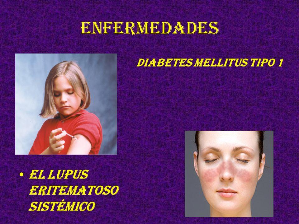 Enfermedades Diabetes mellitus tipo 1 El lupus eritematoso sistémico