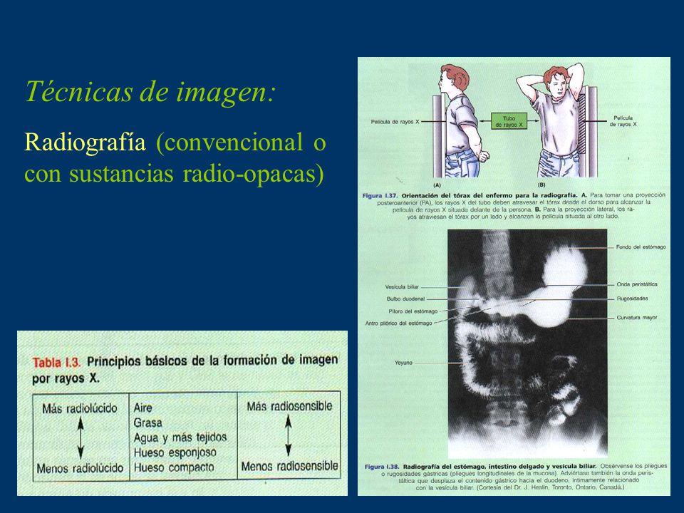 Técnicas de imagen: Radiografía (convencional o con sustancias radio-opacas)