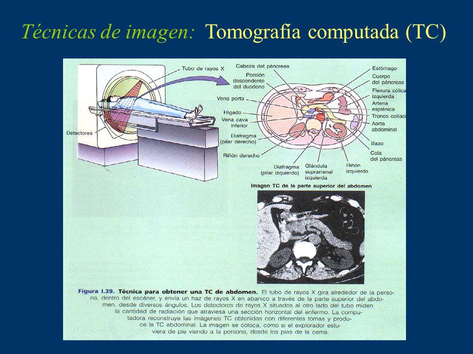 Técnicas de imagen: Tomografía computada (TC)