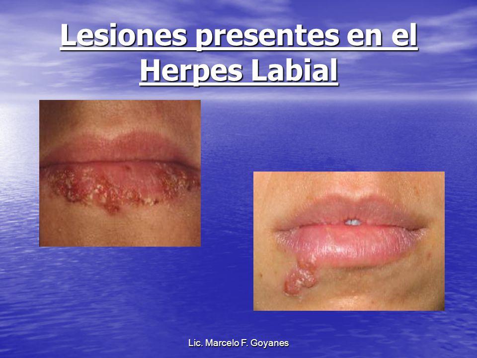 Lesiones presentes en el Herpes Labial