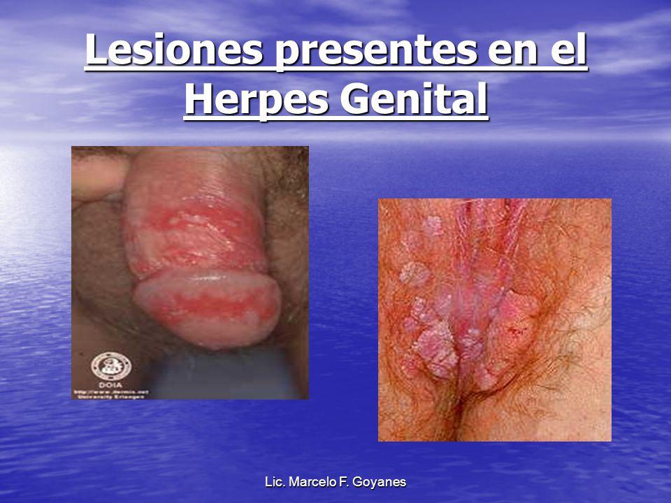 Lesiones presentes en el Herpes Genital