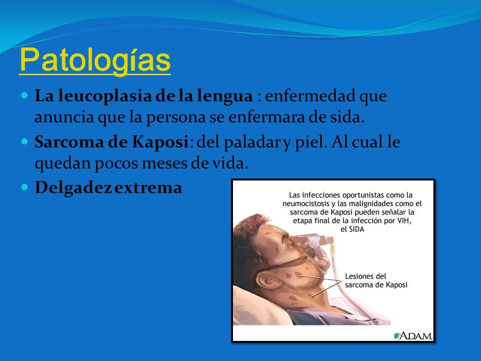 Patologías La leucoplasia de la lengua : enfermedad que anuncia que la persona se enfermara de sida.