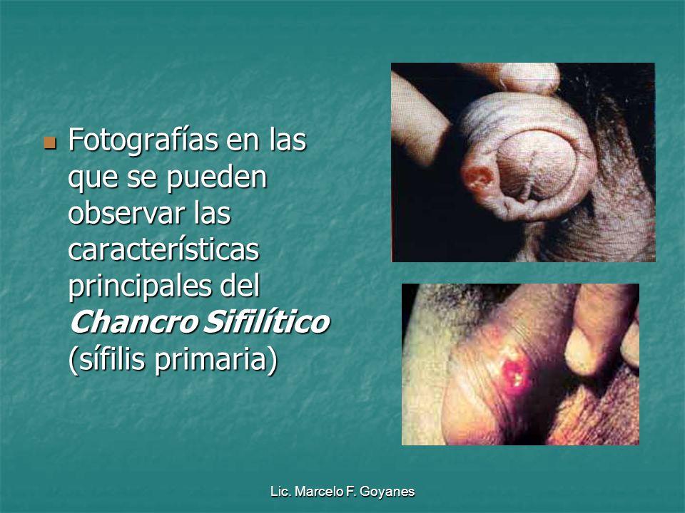 Fotografías en las que se pueden observar las características principales del Chancro Sifilítico (sífilis primaria)