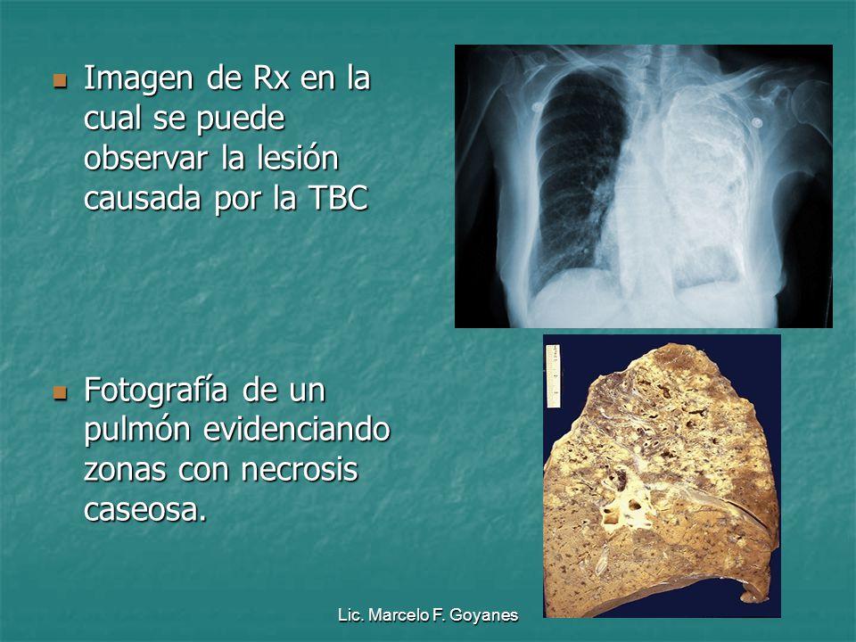 Imagen de Rx en la cual se puede observar la lesión causada por la TBC