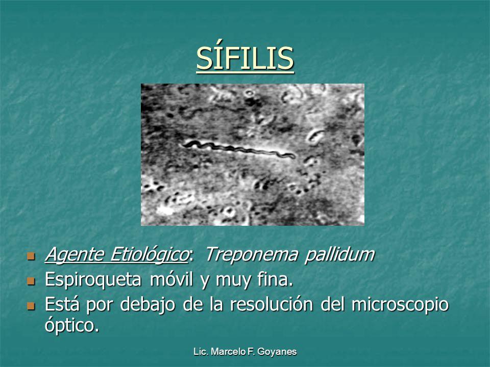 SÍFILIS Agente Etiológico: Treponema pallidum
