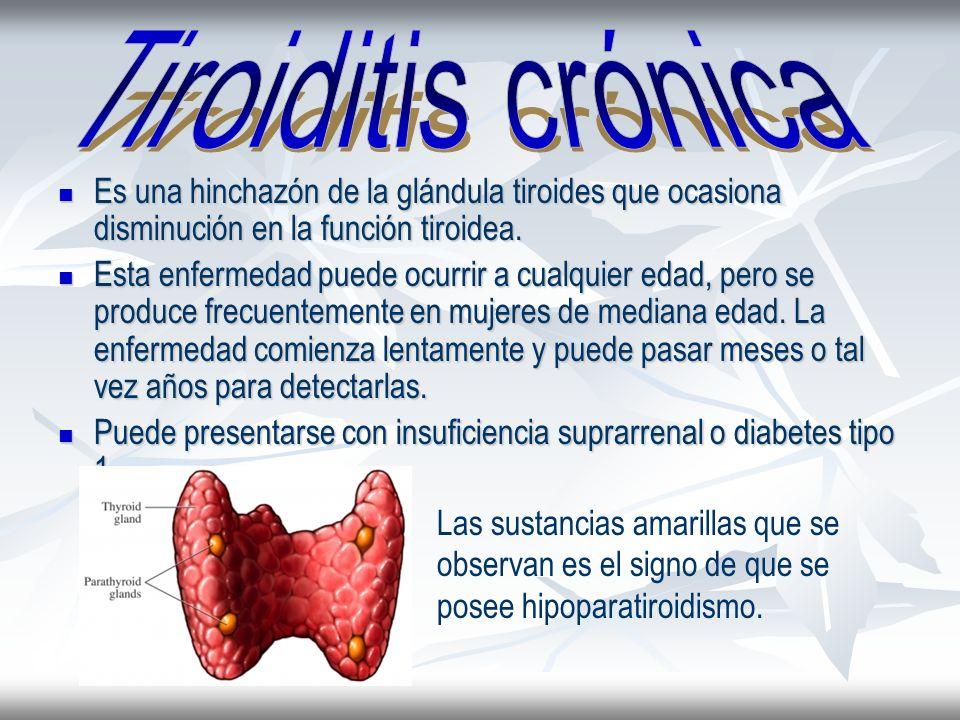 Tiroiditis crónicaEs una hinchazón de la glándula tiroides que ocasiona disminución en la función tiroidea.