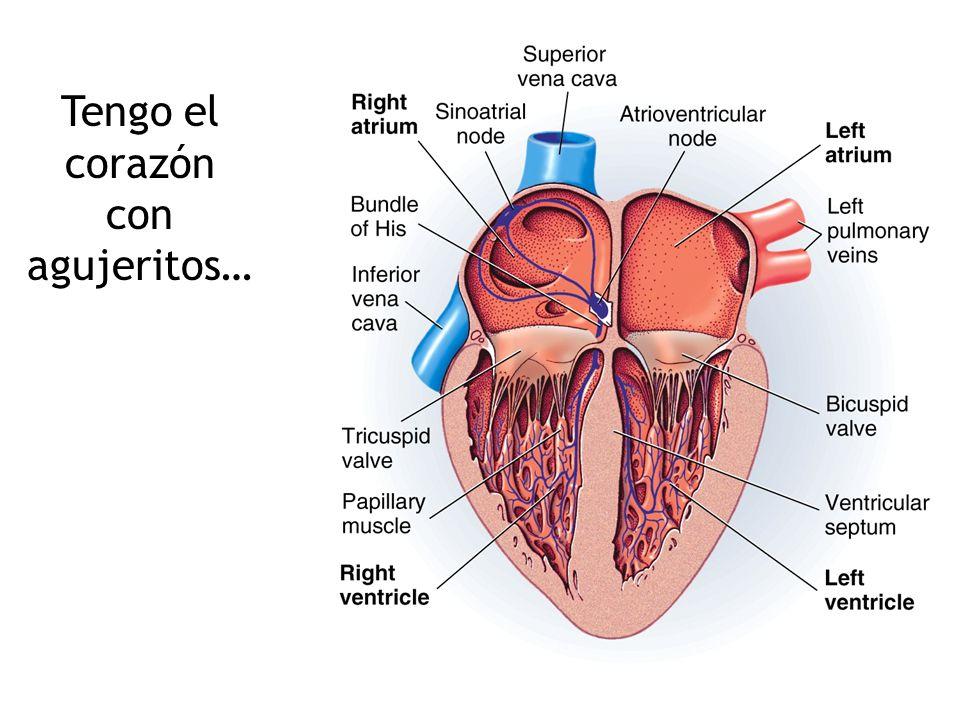 Tengo el corazón con agujeritos…