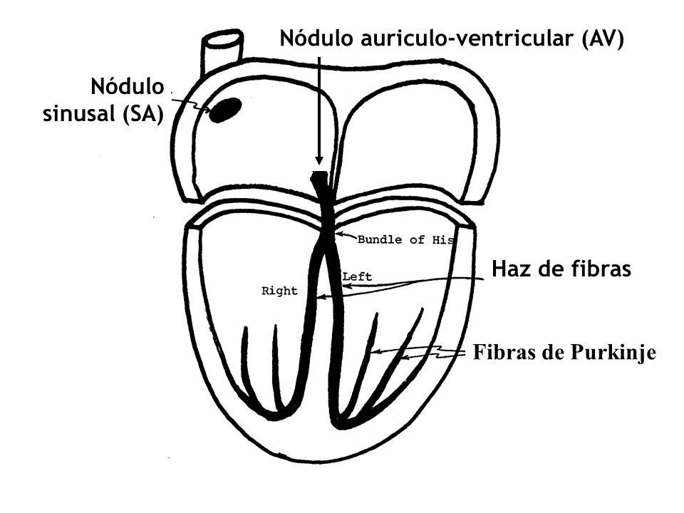 Nódulo auriculo-ventricular (AV)