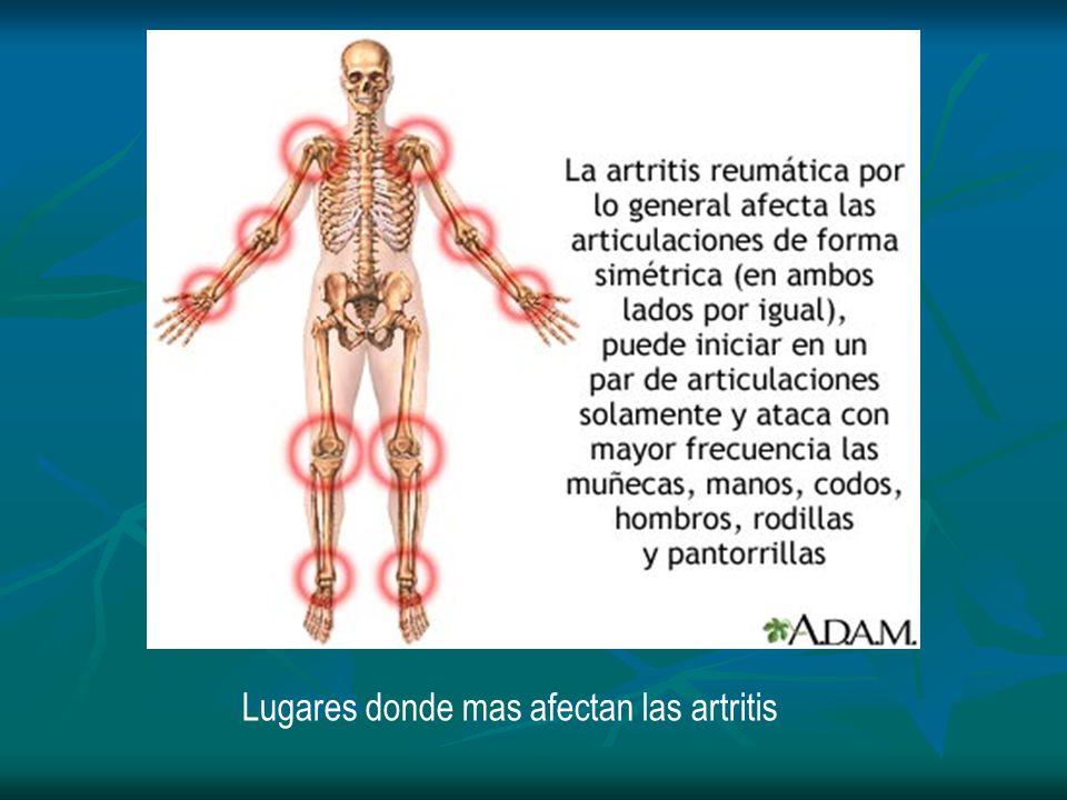 Lugares donde mas afectan las artritis
