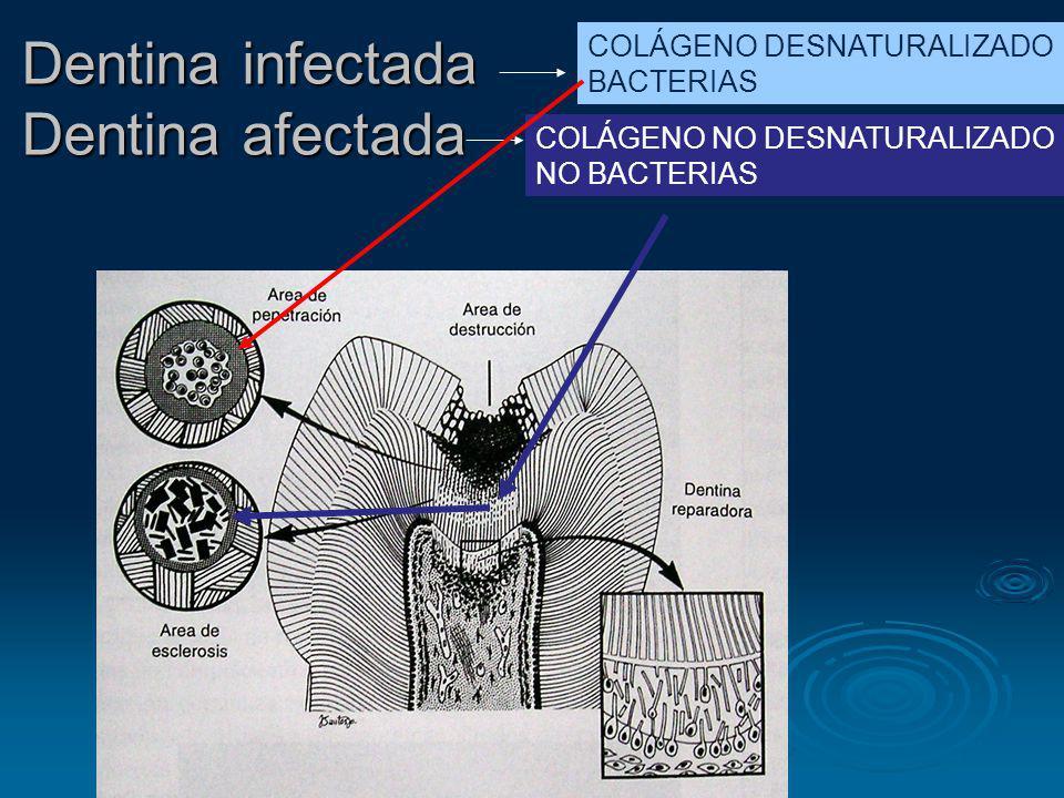 Dentina infectada Dentina afectada