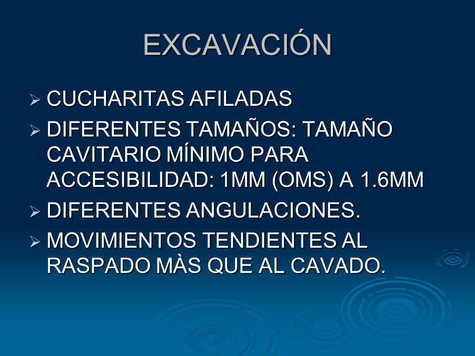 EXCAVACIÓN CUCHARITAS AFILADAS