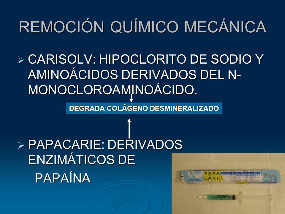 REMOCIÓN QUÍMICO MECÁNICA