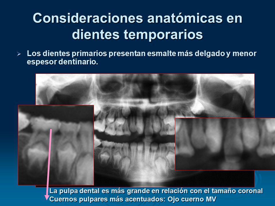 Consideraciones anatómicas en dientes temporarios