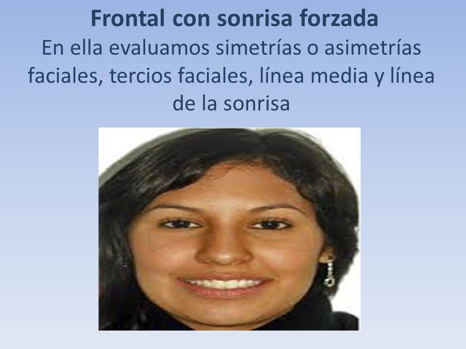 Frontal con sonrisa forzada En ella evaluamos simetrías o asimetrías faciales, tercios faciales, línea media y línea de la sonrisa