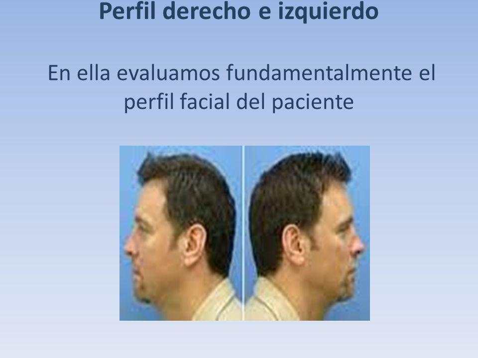 Perfil derecho e izquierdo En ella evaluamos fundamentalmente el perfil facial del paciente