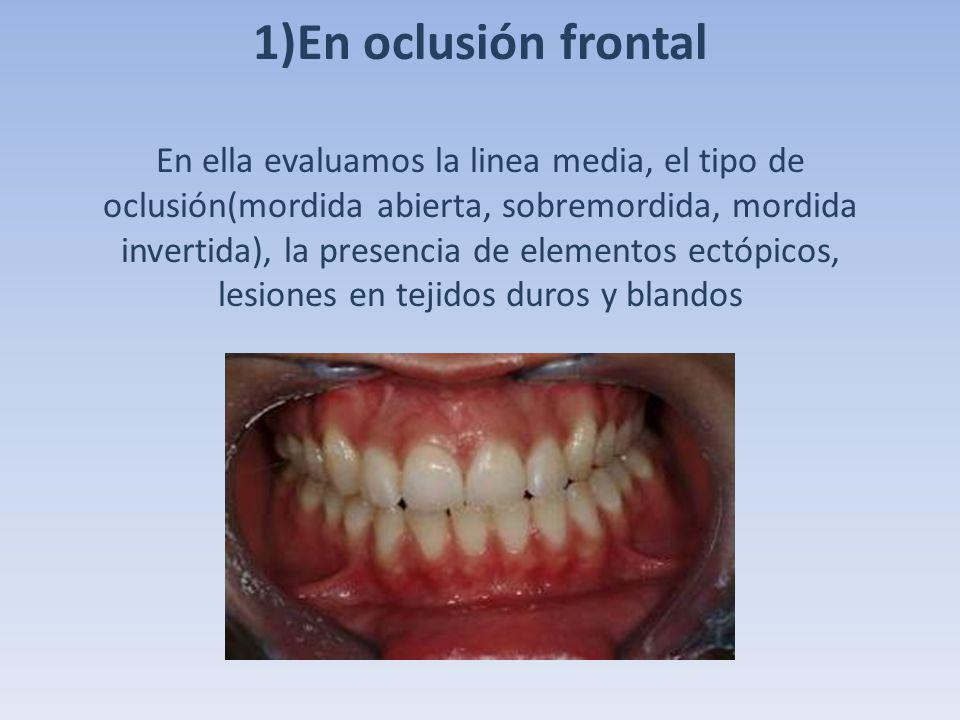 1)En oclusión frontal En ella evaluamos la linea media, el tipo de oclusión(mordida abierta, sobremordida, mordida invertida), la presencia de elementos ectópicos, lesiones en tejidos duros y blandos