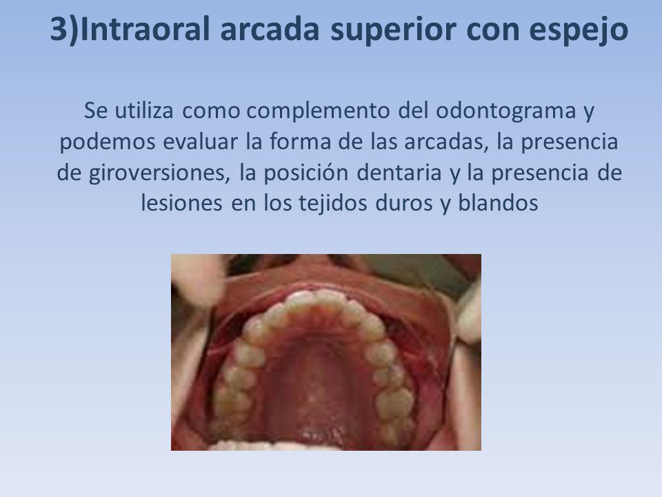 3)Intraoral arcada superior con espejo Se utiliza como complemento del odontograma y podemos evaluar la forma de las arcadas, la presencia de giroversiones, la posición dentaria y la presencia de lesiones en los tejidos duros y blandos