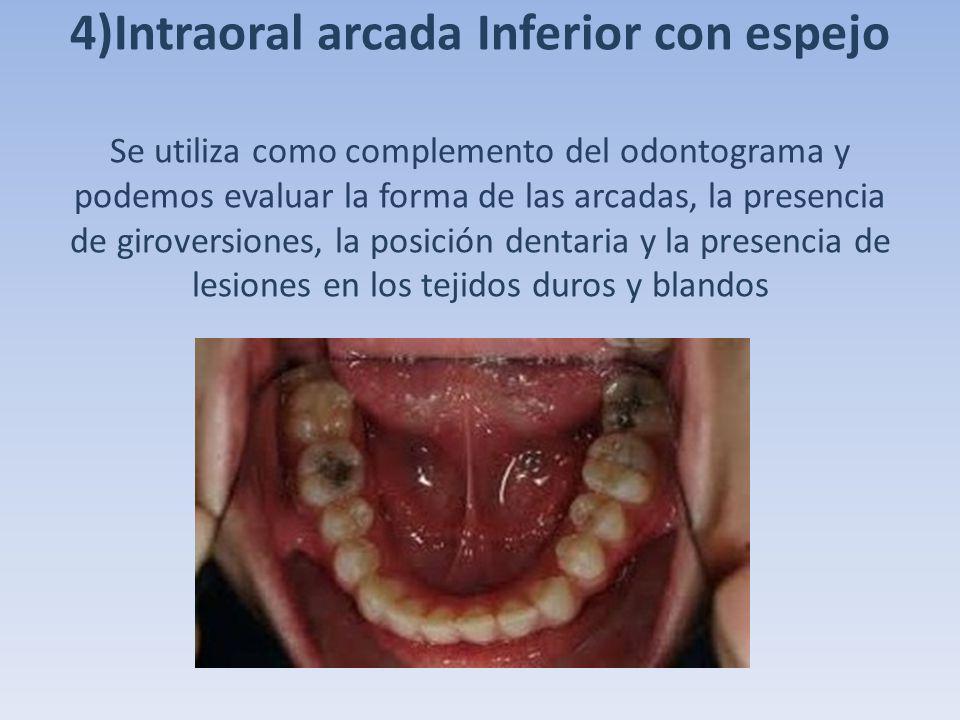 4)Intraoral arcada Inferior con espejo Se utiliza como complemento del odontograma y podemos evaluar la forma de las arcadas, la presencia de giroversiones, la posición dentaria y la presencia de lesiones en los tejidos duros y blandos