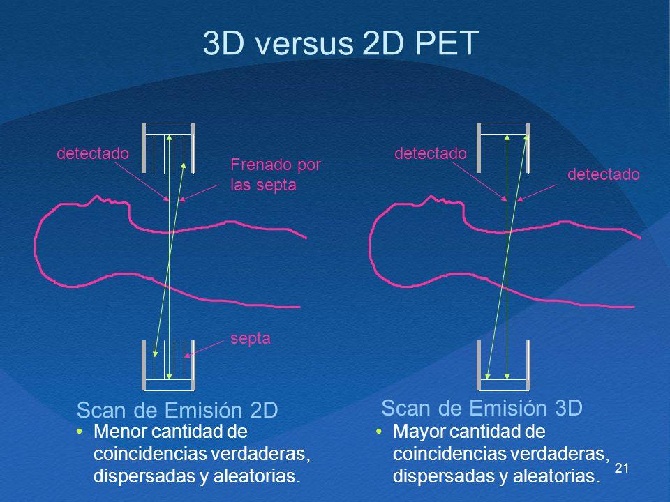3D versus 2D PET Scan de Emisión 2D Scan de Emisión 3D