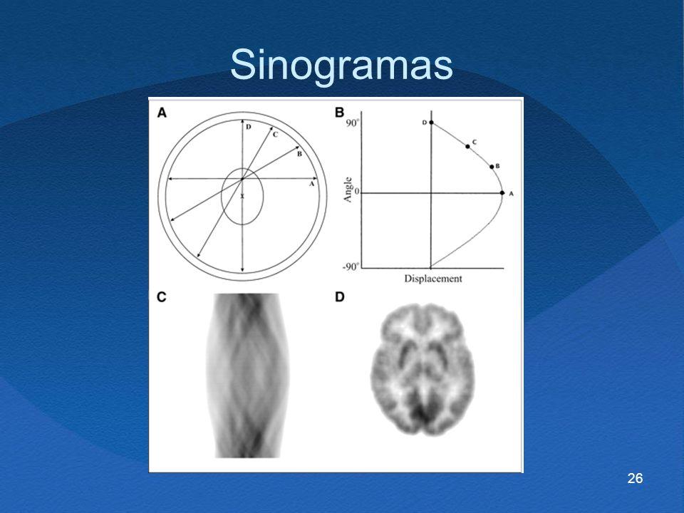 Sinogramas