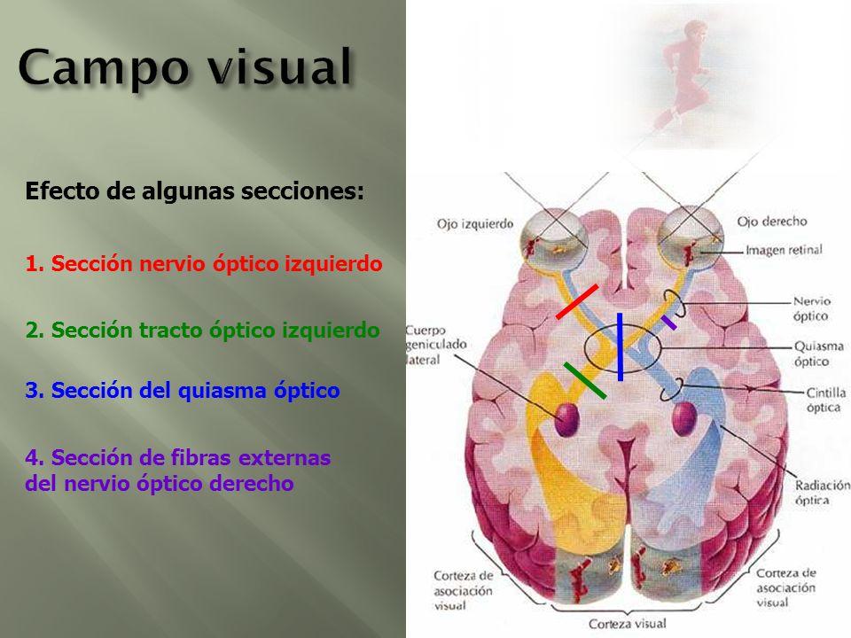 Campo visual Efecto de algunas secciones: