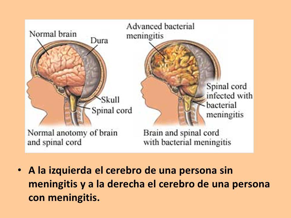 A la izquierda el cerebro de una persona sin meningitis y a la derecha el cerebro de una persona con meningitis.