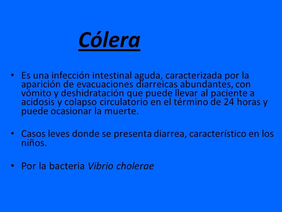 Cólera Por la bacteria Vibrio cholerae