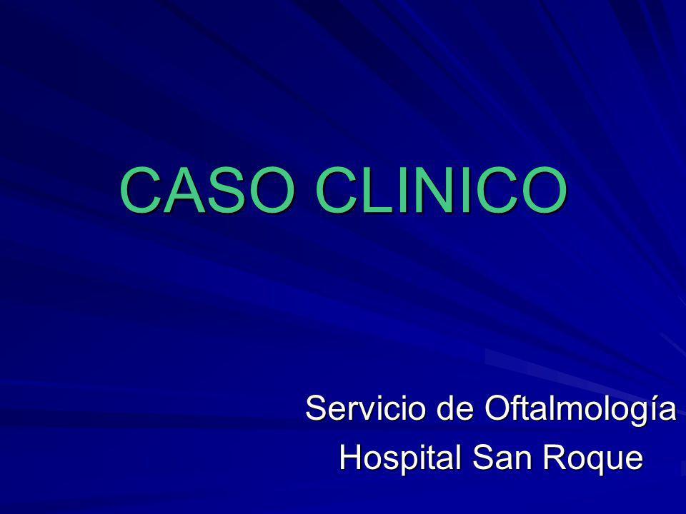 Servicio de Oftalmología Hospital San Roque