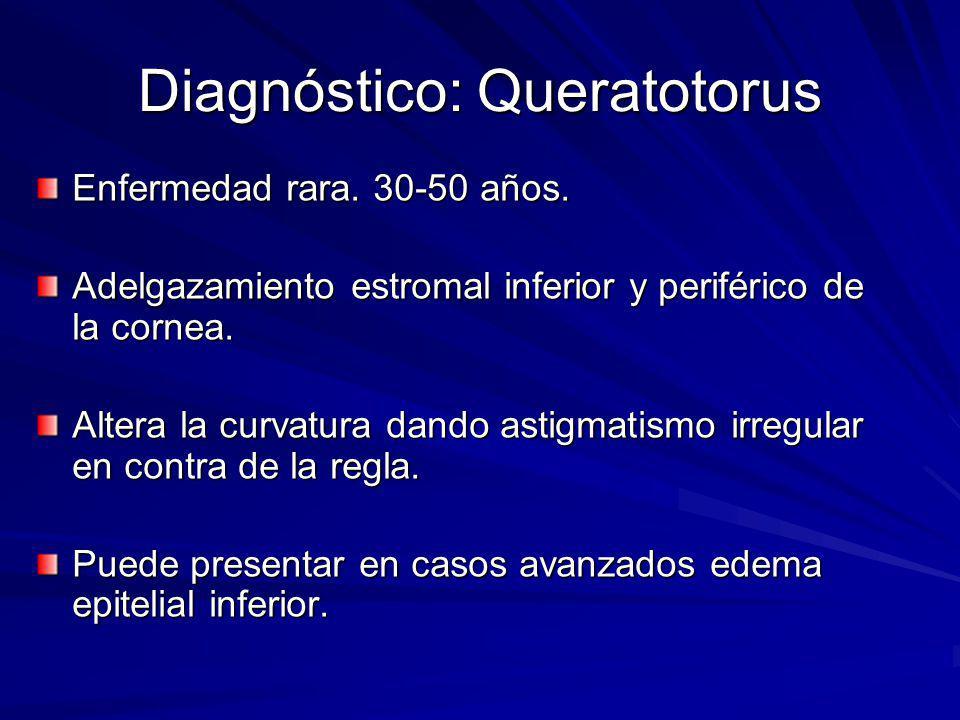Diagnóstico: Queratotorus